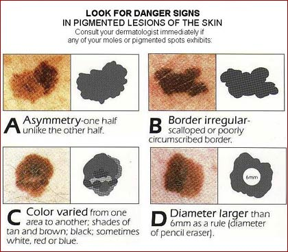 skin lesions sample The normal adult has over 20 square feet of skin so it is easy physical assessment - chapter 2 integumentary system skin cancer names of commonly seen lesions.
