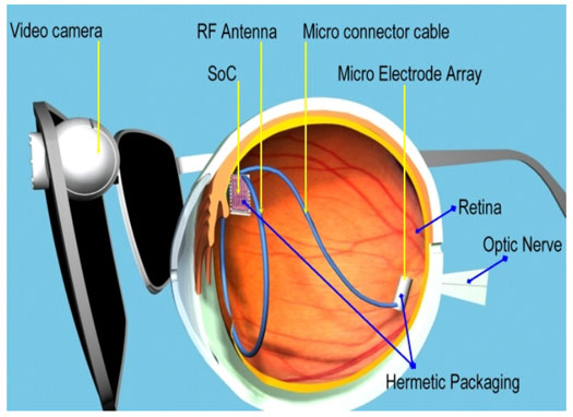 Restoring Vision, Hearing and Movement