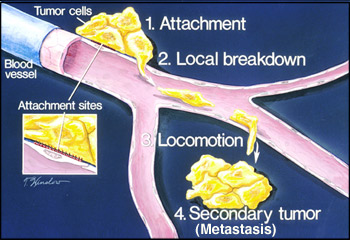 Stages of metastasis: 1 tumor attachment, 2 tumor breakdown, 3 cell transport, 4 formation of secondary tumor
