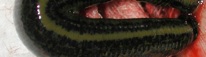 close-up of green and black slimy, limbless creature (a leech) surrounded by blood