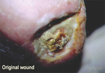 open wound, with whitish liquid covering much of it
