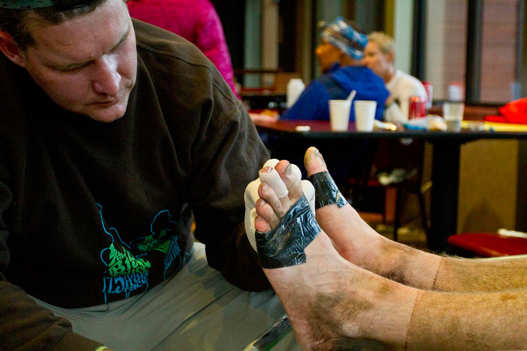 Man tending to another's bruised, wounded feet with duct tape around toes