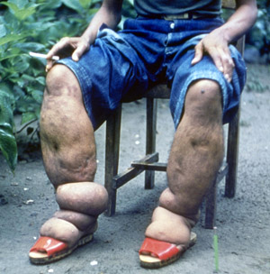 Man sits in chair with only his lower half visible. Both legs and feet are severely swollen.