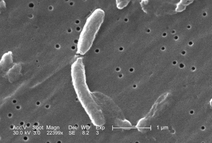black/white photo of cylindrical shapes (bacteria)