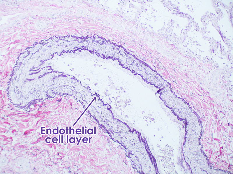 Cross-section of artery under microscope, inner (endothelium) and outer layers of artery visible