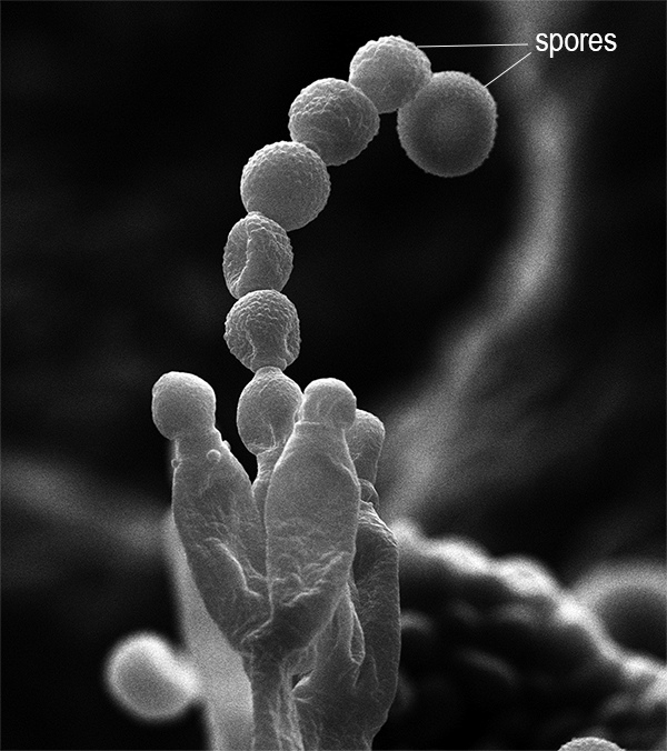 Scanning electron microscope image of mold, chain of spherical spores standing vertically