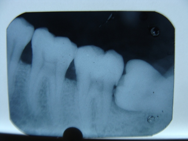 Xray of three normally-positioned human molars and a fourth turned on its side, growing into the others.