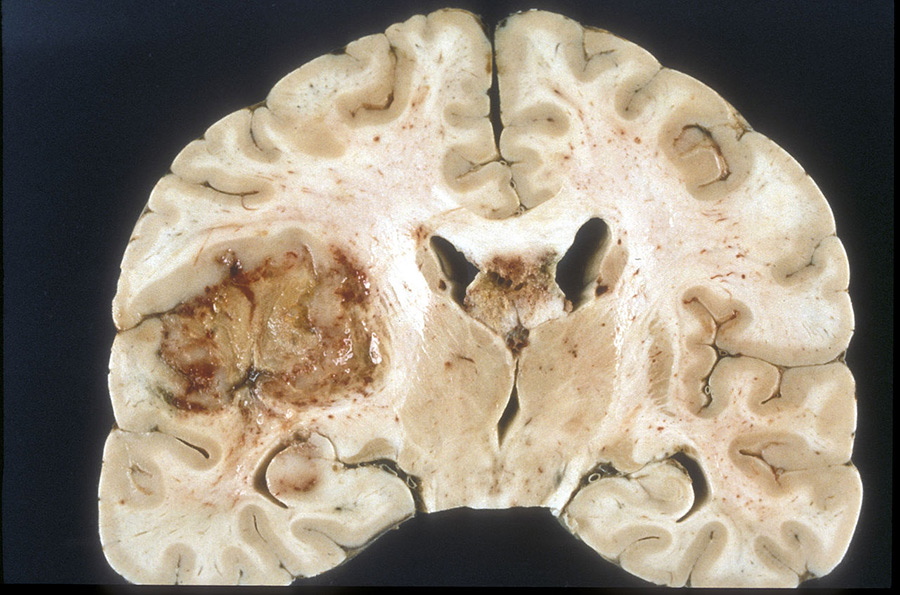 Slice of human brain with a tumor in one hemisphere.