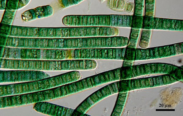 green striped bacteria are long and narrow worm-like shapes