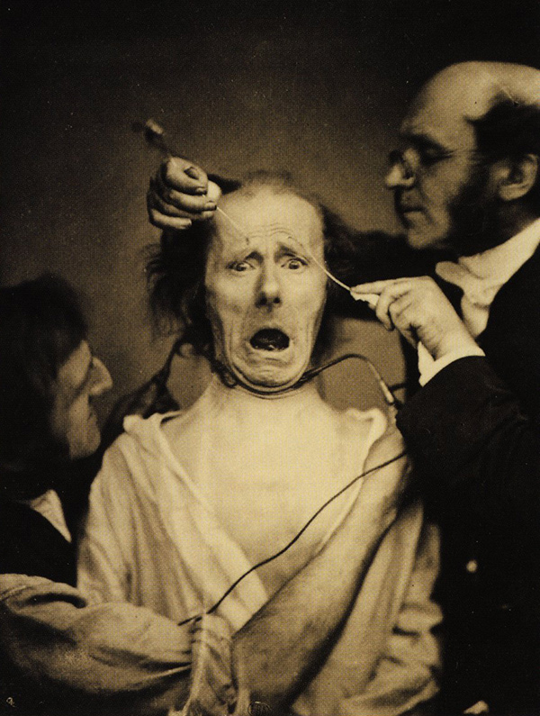 Old, sepia-toned photo showing bespectacled Guillaume Duchenne de Boulogne performing facial electrostimulus experiment on a man with a horrified look on his face