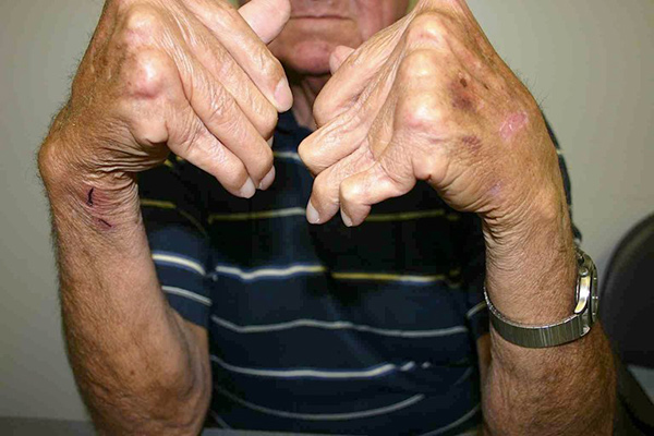 Photo of elderly man with buckled hands outstretched to show arthritic fingers.